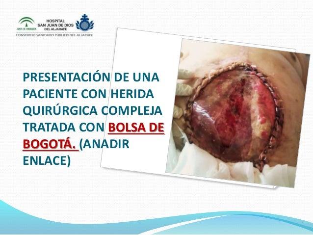 PRESENTACIÓN DE UNA PACIENTE CON HERIDA QUIRÚRGICA COMPLEJA TRATADA CON BOLSA DE BOGOTÁ. (ANADIR ENLACE)