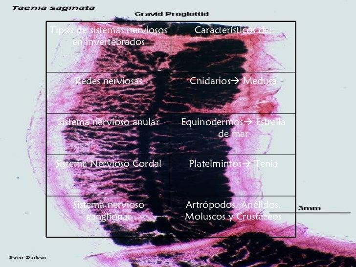 Artrópodos, Anélidos, Moluscos y Crustáceos Sistema nervioso ganglionar Platelmintos   Tenia Sistema Nervioso Cordal Equi...