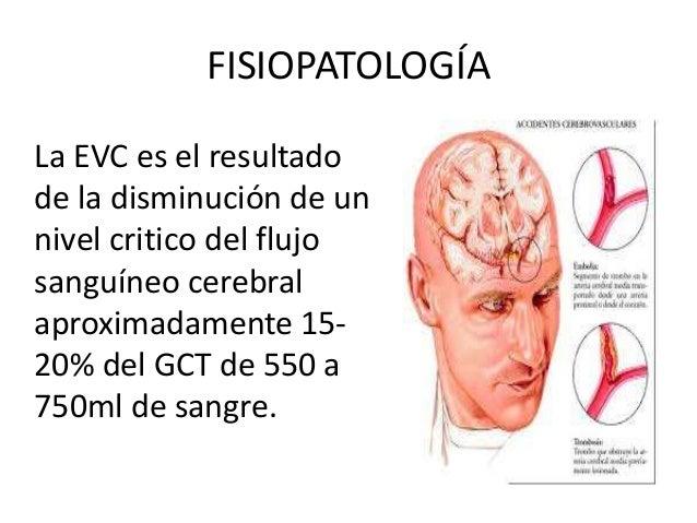 Enfermedad Cerebrovascular (EVC) Carlos David Abad