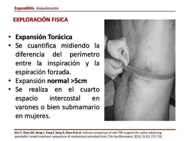 Espondilitis aquilosante for Cuarto espacio intercostal