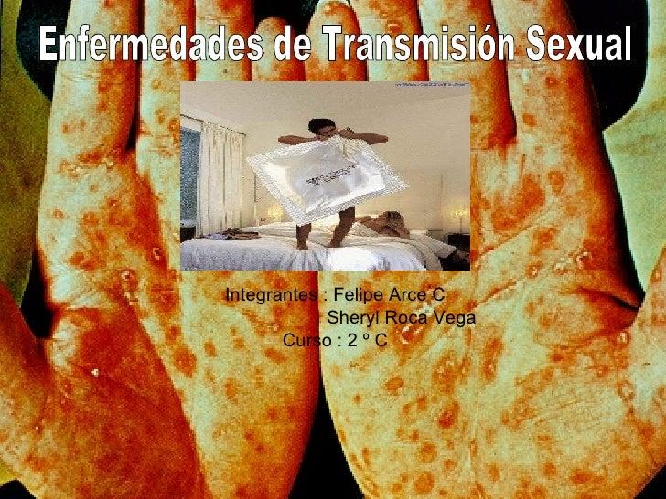Integrantes : Felipe Arce C Sheryl Roca Vega  Curso : 2 º C Enfermedades de Transmisión Sexual