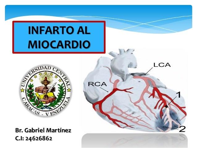 INFARTO AL  MIOCARDIO  Br. Gabriel Martínez  C.I: 24626862