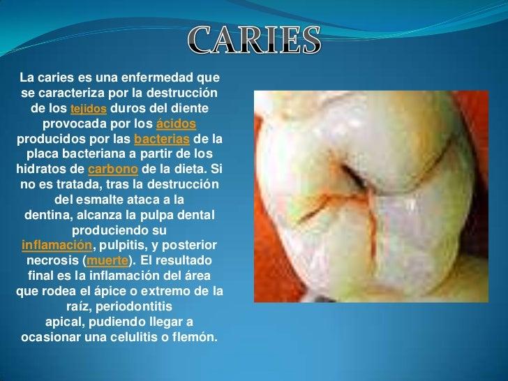 La caries es una enfermedad que se caracteriza por la destrucción   de los tejidos duros del diente     provocada por los ...