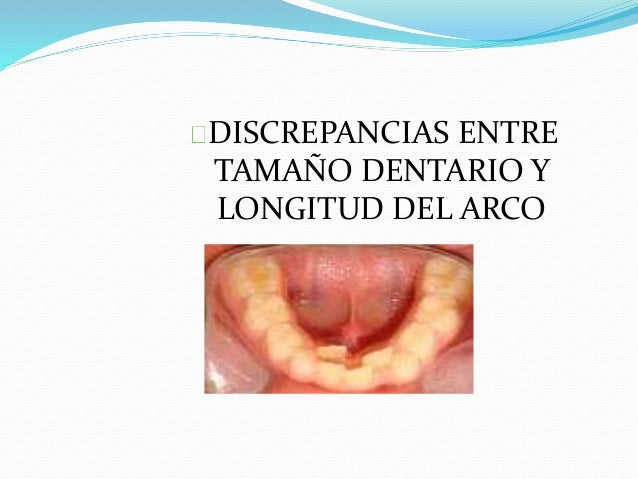 DISCREPANCIAS ENTRE TAMAÑO DENTARIO Y LONGITUD DEL ARCO