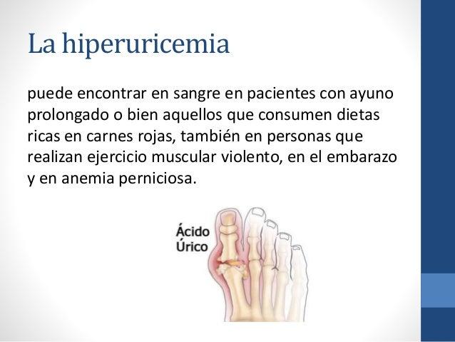 que sintomas da el acido urico bajo recetas caseras contra la gota causas y remedios para la gota