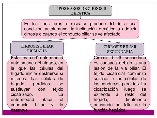 Resultado de imagen para Tipos de cirrosis hepática