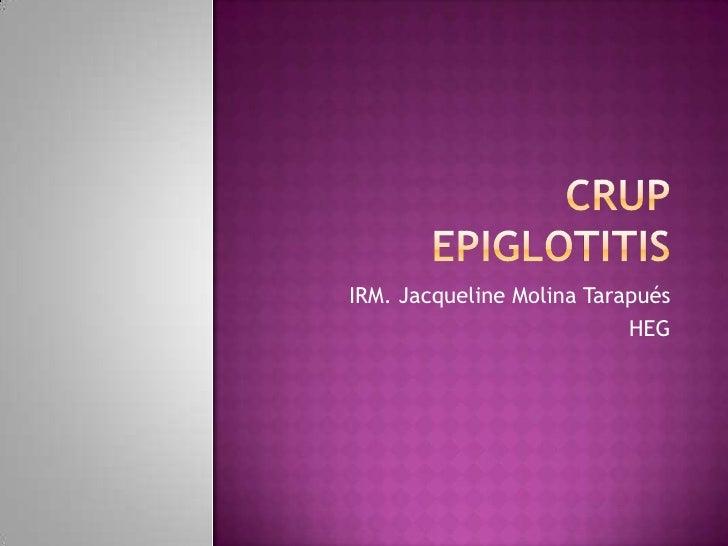 Crupepiglotitis<br />IRM. Jacqueline Molina Tarapués<br />HEG<br />
