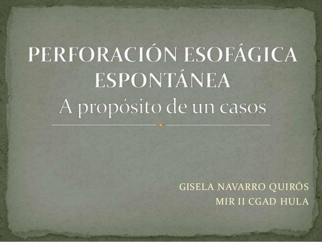 GISELA NAVARRO QUIRÓS MIR II CGAD HULA