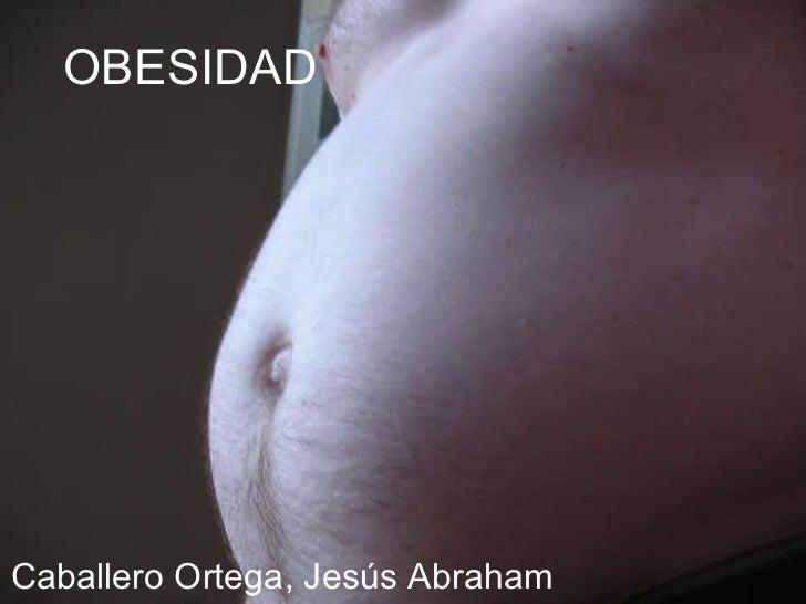 OBESIDAD Caballero Ortega, Jesús Abraham