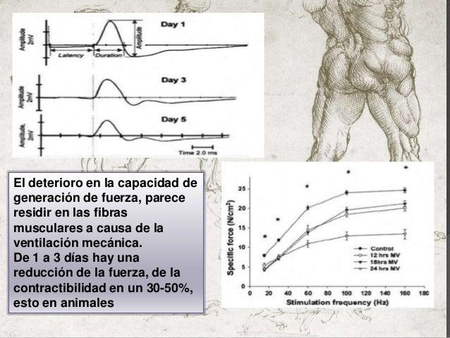 Presentación disfunción diafragmática Slide 3