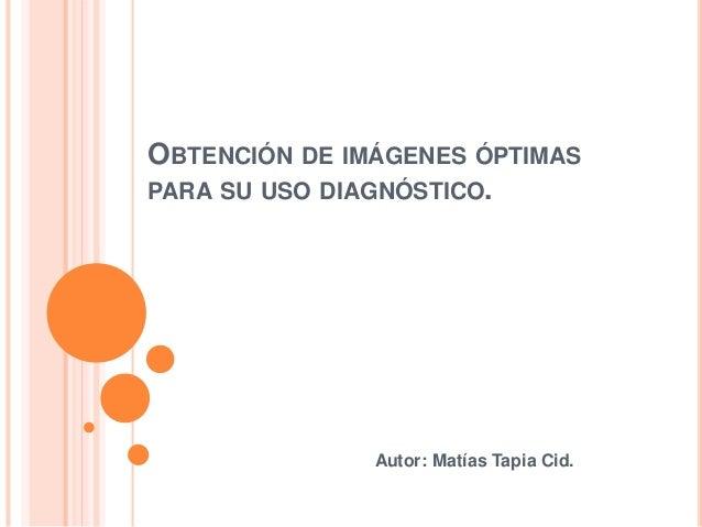 OBTENCIÓN DE IMÁGENES ÓPTIMAS PARA SU USO DIAGNÓSTICO. Autor: Matías Tapia Cid.
