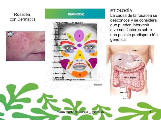 María Martínez García _ MiMAGA 1 Rosacéa con Dermatitis ETIOLOGÍA La causa de la rosácea se desconoce y se considera que p...