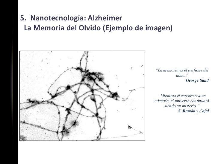 """5. Nanotecnología: Alzheimer La Memoria del Olvido (Ejemplo de imagen)                                     """"La memoria es ..."""