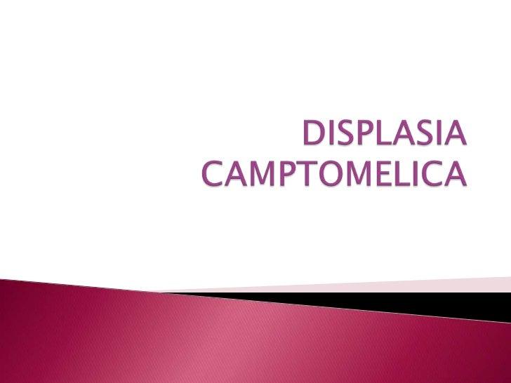 DISPLASIA CAMPTOMELICA<br />
