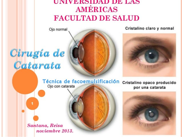 UNIVERSIDAD DE LAS AMÉRICAS FACULTAD DE SALUD  Técnica de facoemulsificación  1  Santana, Reisa noviembre 2013.