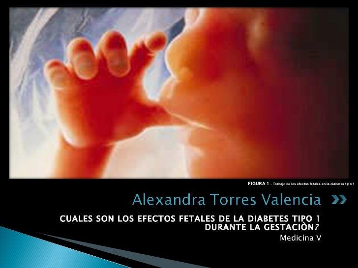 <ul><li>CUALES SON LOS EFECTOS FETALES DE LA DIABETES TIPO 1 DURANTE LA GESTACIÒN ?  </li></ul><ul><li>Medicina V </li></u...