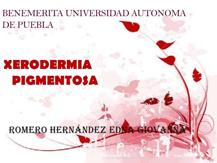 BENEMERITA UNIVERSIDAD AUTONOMA DE PUEBLA    XERODERMIA  PIGMENTOSA    Romero Hernández Edna Giovanna                   XE...