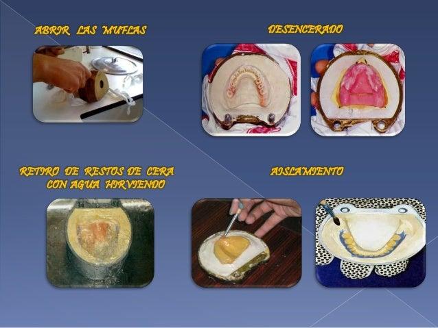 Prostodoncia total de boucher