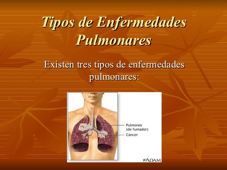 Tipos de Enfermedades Pulmonares Existen tres tipos de enfermedades pulmonares: