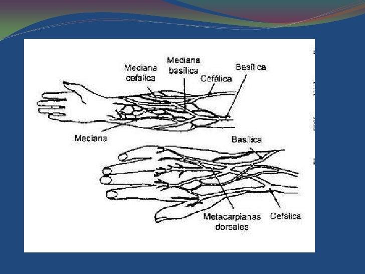 La várice varicosa de los pie