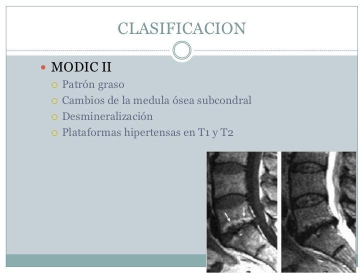 El tratamiento los pinchazos del dolor en la espalda