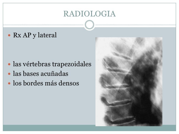 Si es posible dar a luz a la osteocondrosis del departamento lumbar