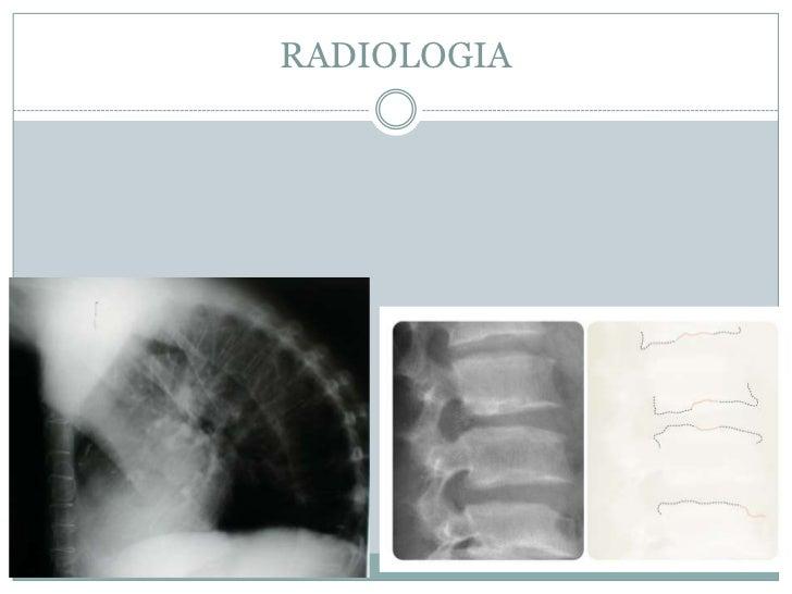 La crisis compresiva de la columna vertebral de la fase del tratamiento