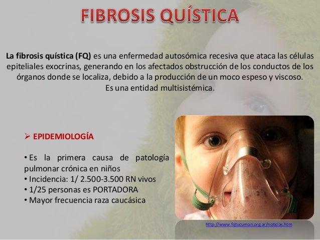 FIBRÓSIS QUÍSTICA Slide 2