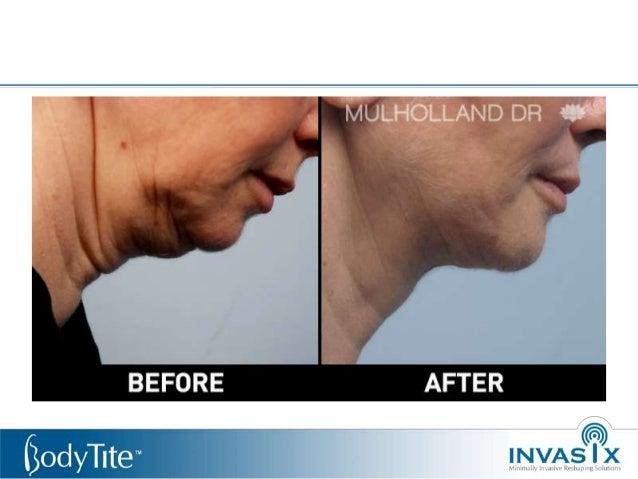 Presentacion invasix