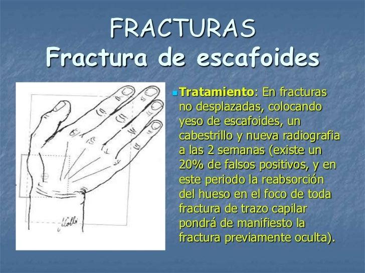FRACTURASFractura de escafoides           Tratamiento:   En fracturas           no desplazadas, colocando           yeso ...
