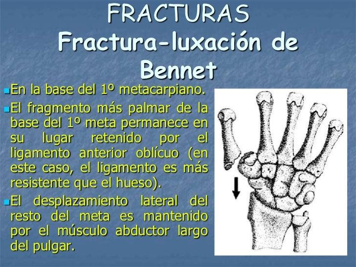 FRACTURAS        Fractura-luxación de               BennetEn  la base del 1º metacarpiano.El fragmento más palmar de la ...