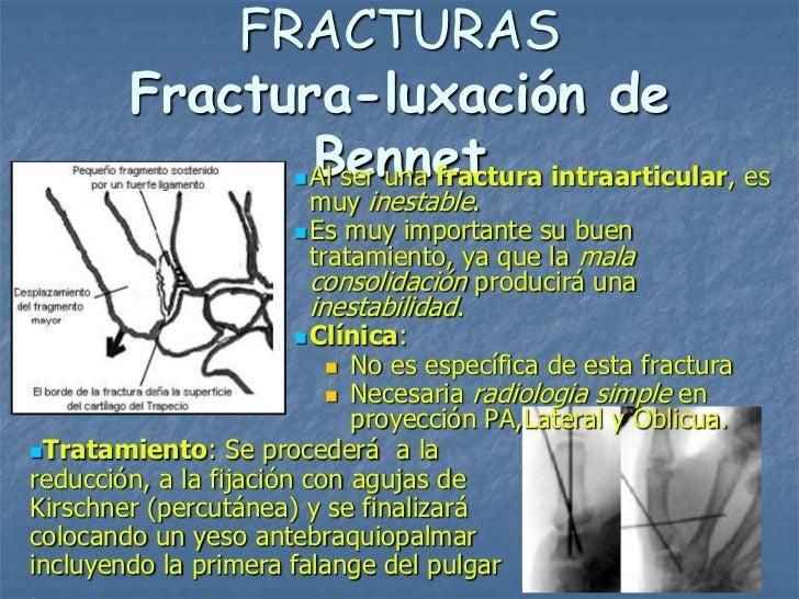 FRACTURAS        Fractura-luxación de               Bennet               Al ser una fractura intraarticular, es           ...
