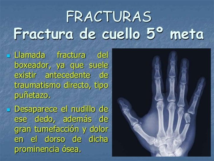 FRACTURAS    Fractura de cuello 5º meta   Llamada fractura del    boxeador, ya que suele    existir antecedente de    tra...