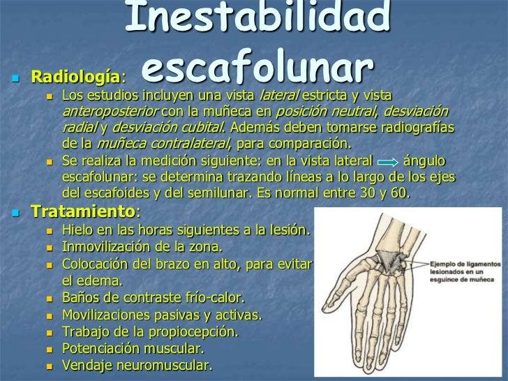 Inestabilidad   Radiología:                         escafolunar         Los estudios incluyen una vista lateral estricta...