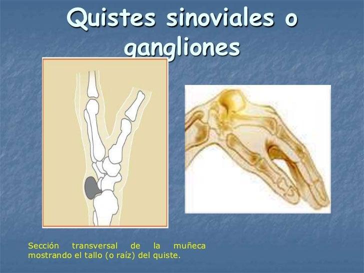 Quistes sinoviales o             ganglionesSección  transversal      de    la   muñecamostrando el tallo (o raíz) del quis...