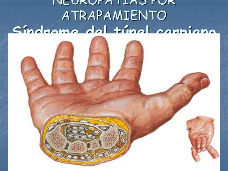 NEUROPATÍAS POR      ATRAPAMIENTOSíndrome del túnel carpiano