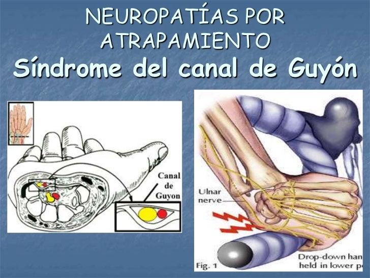 NEUROPATÍAS POR      ATRAPAMIENTOSíndrome del canal de Guyón