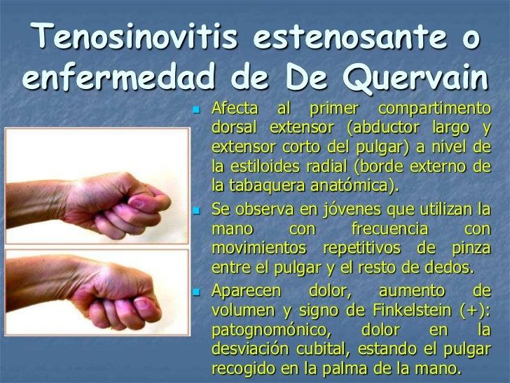 Tenosinovitis estenosante oenfermedad de De Quervain            Afecta al primer compartimento             dorsal extenso...