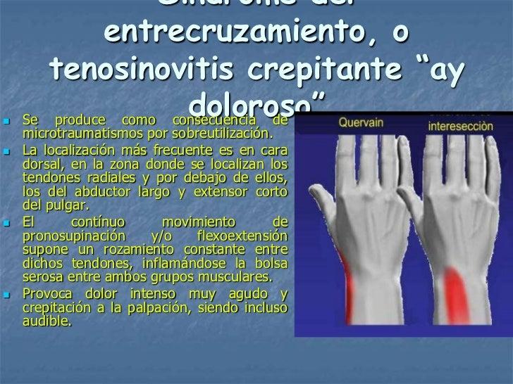 "Síndrome del               entrecruzamiento, o        tenosinovitis crepitante ""ay   Se                       doloroso""  ..."