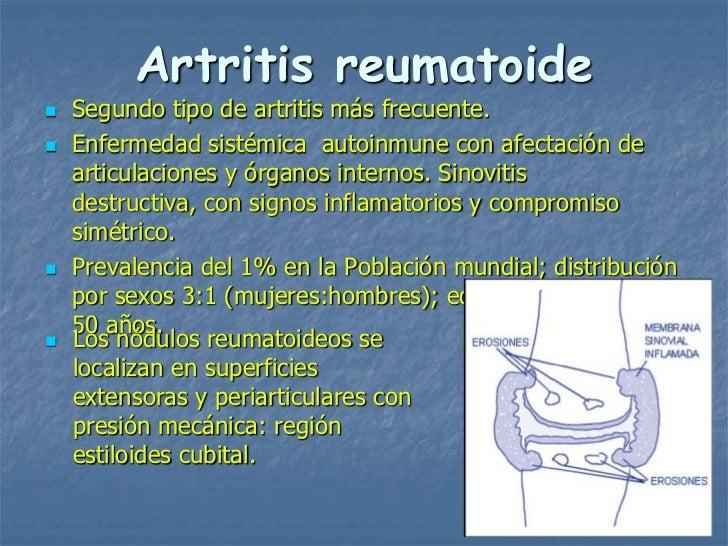Artritis reumatoide   Segundo tipo de artritis más frecuente.   Enfermedad sistémica autoinmune con afectación de    art...