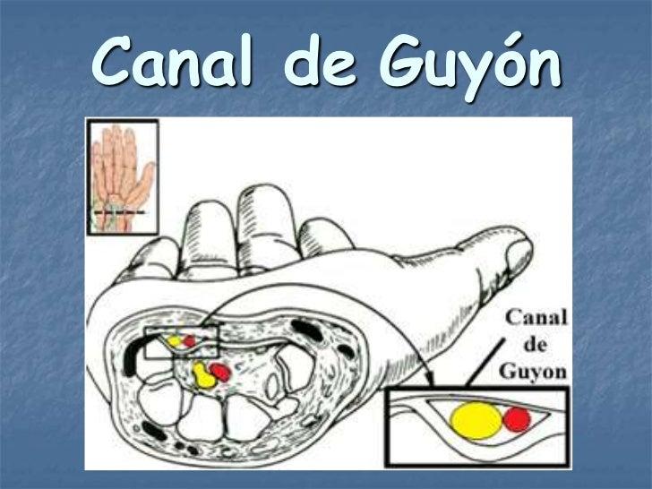Canal de Guyón