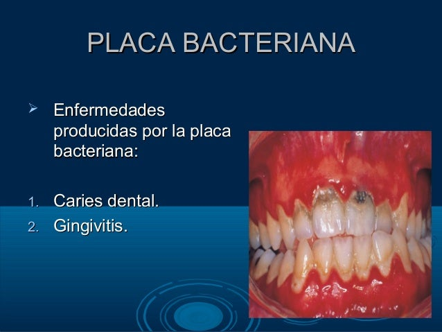 Hilo dental blanco - 3 1