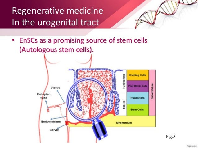 Implications Of Stem Cells In Gynecology And Obstetrics