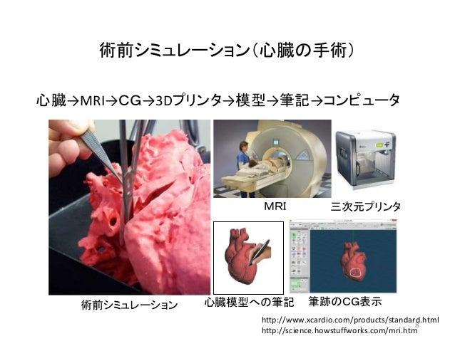 術前シミュレーション(心臓の手術) 心臓→MRI→CG→3Dプリンタ→模型→筆記→コンピュータ http://www.xcardio.com/products/standard.html http://science.howstuffworks...