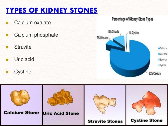 Presentation kidney-stone final