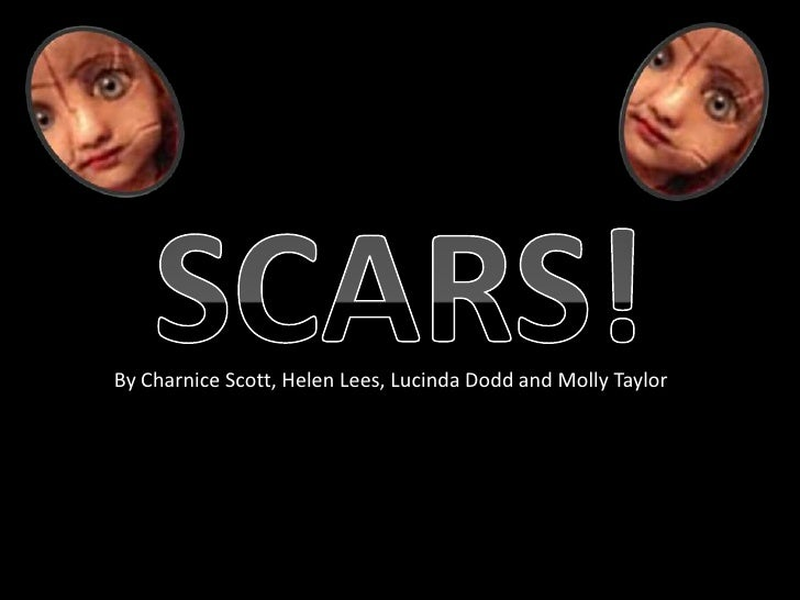 SCARS!<br />By Charnice Scott, Helen Lees, Lucinda Dodd and Molly Taylor<br />