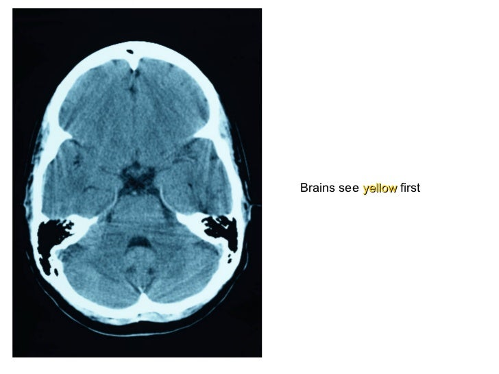 Brains see  yellow  first