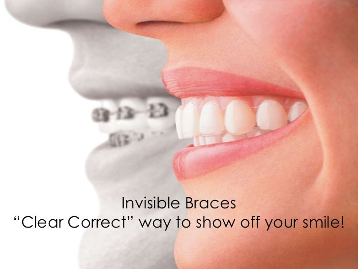 "Invisible Braces""Clear Correct"" way to show off your smile!"