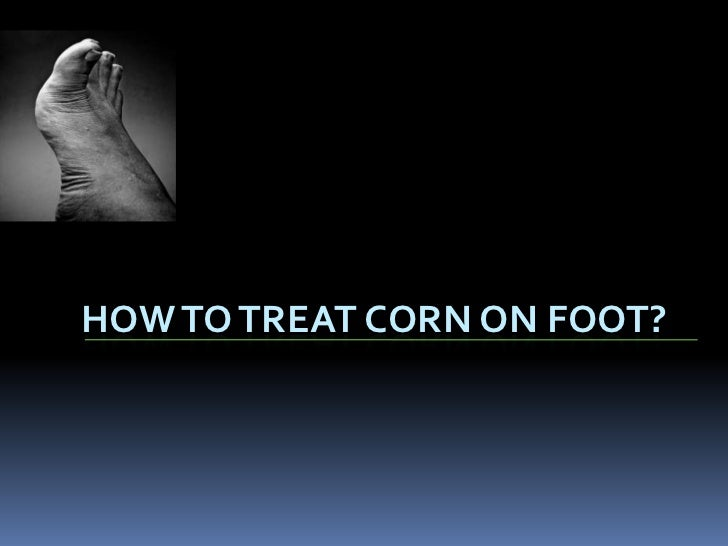 HOW TO TREAT CORN ON FOOT?