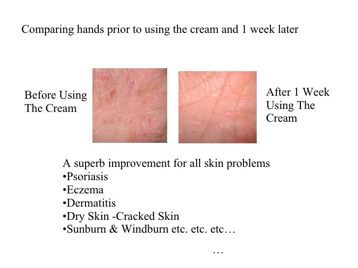 how to get rid of psoriasis on hands